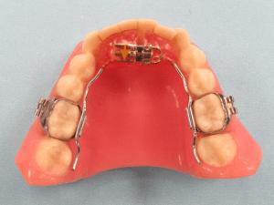 3D_Skelatal_Expander_Fixed_Dental_Appliance-300x225