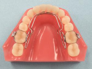 3d_Wilson_QUAD-ACTION_Fixed_Dental_Appliance-300x225