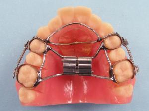 CD_Advancer_Fixed_Dental_Appliance-300x225
