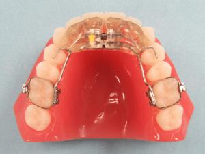 Rickinator_Plus_Fixed_Dental_Appliance-300x225