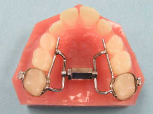 Super_Screw_Expander_Fixed_Dental_Appliance-300x225